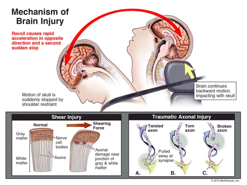 Brain Injury diagram