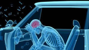 Maryland auto accident attorney